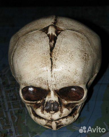 череп младенца фото